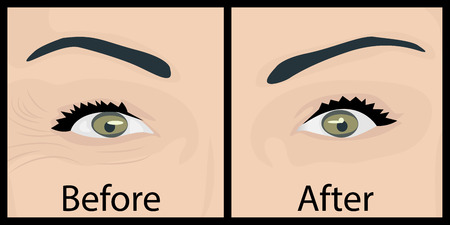 Wrinkles and fine lines around the eye with before and after treatment image Stock Illustratie