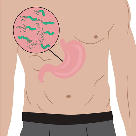 A stomach full of Helicobacter pylori in a mans body.