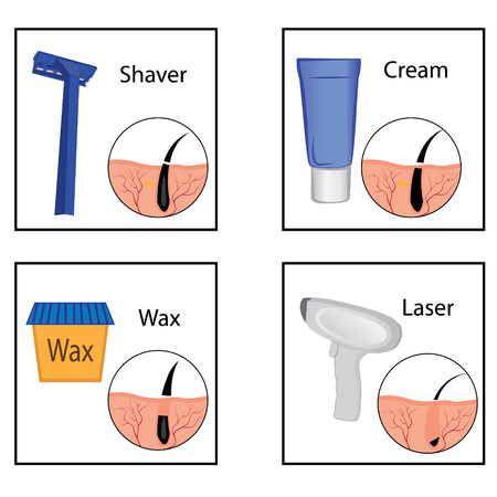 Hair removal methods and its result on a girl's body vector illustration