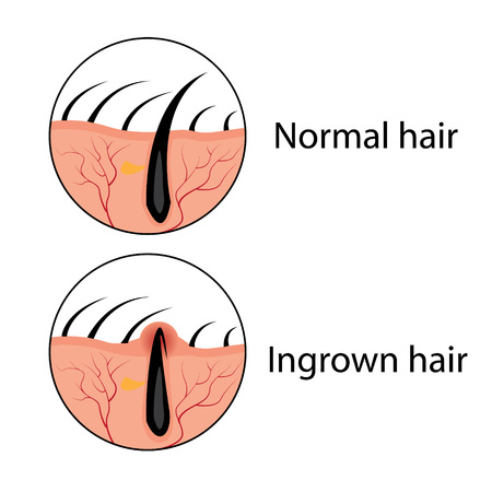 Normal and ingrown hair vector illustration. Skincare problem.