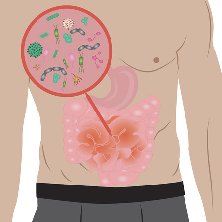 Stop  infection overgrowth in  intestine vector illustration Illusztráció