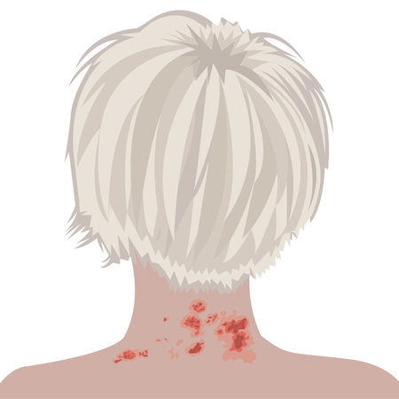 Shingles on a woman neck vector illustration