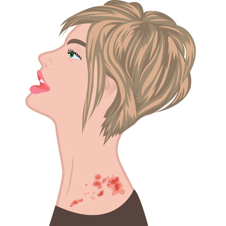 Shingles on a woman shoulder.   varicella zoster   vector illustration 向量圖像
