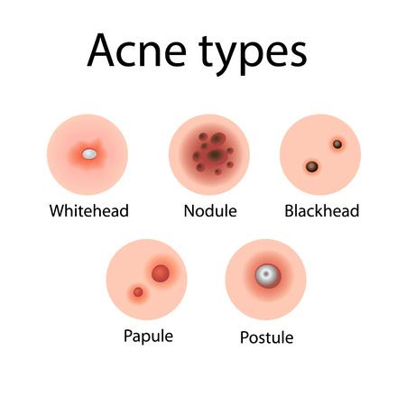Acne types vector illustration. Cosmetology. Derma problems Illustration