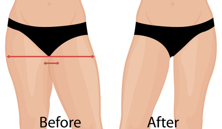 Fat and slim girl's back. Fat thig. Liposuction. Before and after. Woman body correction vector illustration