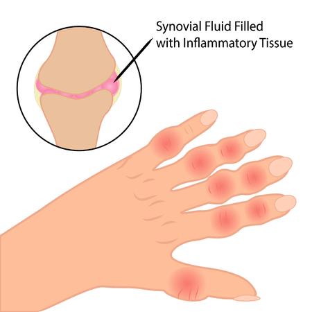 Rheumatoid arthritis on fingers medical vector illustration on a white background Vector Illustration