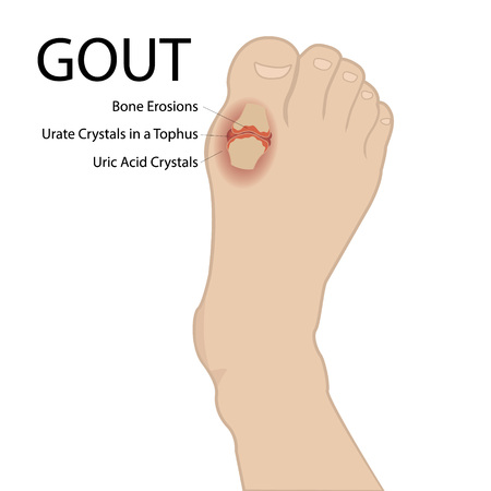 Gout arthritis. Human foot. Vector medical illustration on a white background