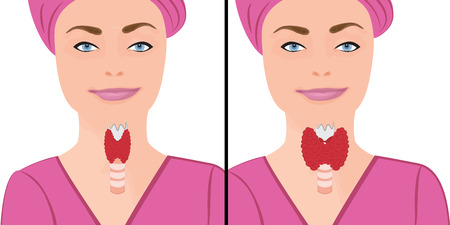 Thyroid healthy and enlarged thyroid. hypothyroid vector illustration on a white background