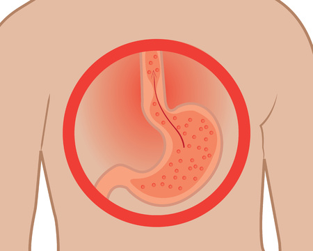 Gastroesophageal reflux desease. Heartburn Gerd stomach in a human body vector illustration on a white background Stock Illustratie