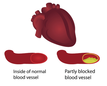 Healthy and blocked blood vessels illustration