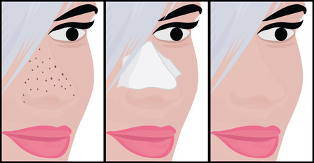Blackheads on Nose vector illustration showing skin problems
