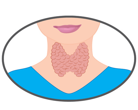 Goiter. Enlarged Thyroid. Endocrine disfunction vector illustration on a white background. Hyperthyroidism