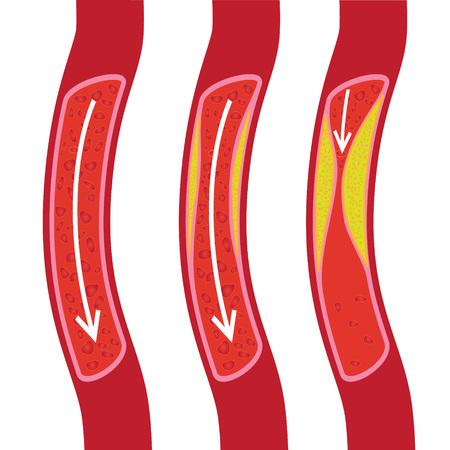 Gesunde, teilweise blockierte Blutgefäße und blockierte Blutgefäße. Plakette Vektorgrafik
