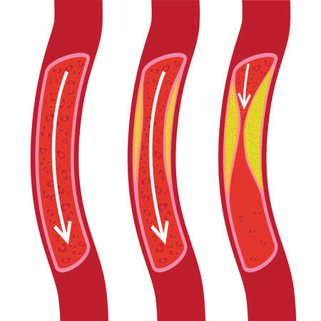 Gezond, gedeeltelijk geblokkeerd bloedvat en geblokkeerde bloedvatillustratie. plaquette Vector Illustratie