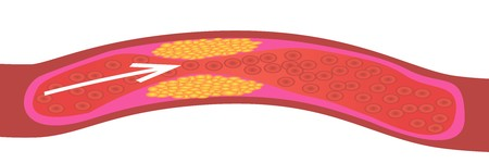 Levels of cholesterol plaque in vessels vector illustration