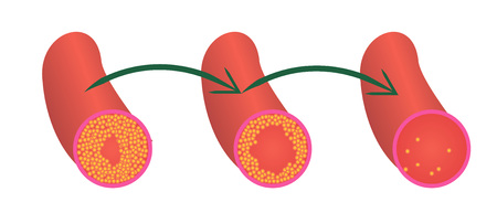 Reduce Levels of cholesterol plaque in vessels vector illustration