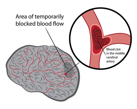 Stroke develope in human brains vecroe illustration