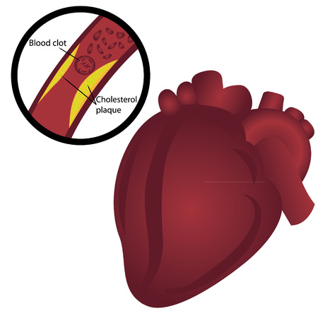 Blood clot  cholesterol plaque in artery Heart attack vector illustration