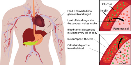 Blood sugar glucose absorbtion in a human body  infographics vector illustration 일러스트