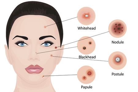 Tipos de acné en una ilustración de vector de cara. Cosmetología cuidado de la piel, tratamiento de la piel.