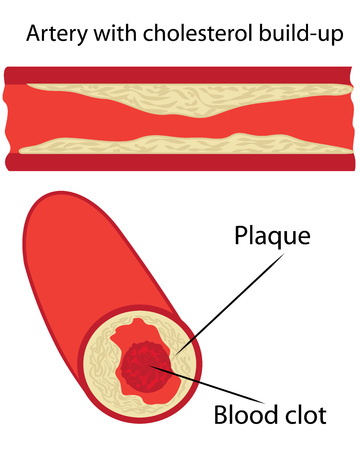 cholesterol plaque in artery vessels vector illustration