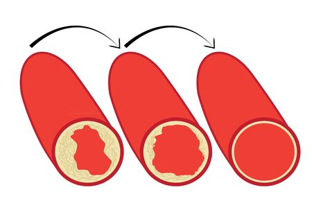 Reduce Levels of cholesterol plaque in vessels vector illustration on a white background