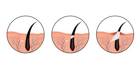Les boutons d'acné développent une illustration vectorielle de problème de peau concept cosmétologie sur fond blanc Vecteurs
