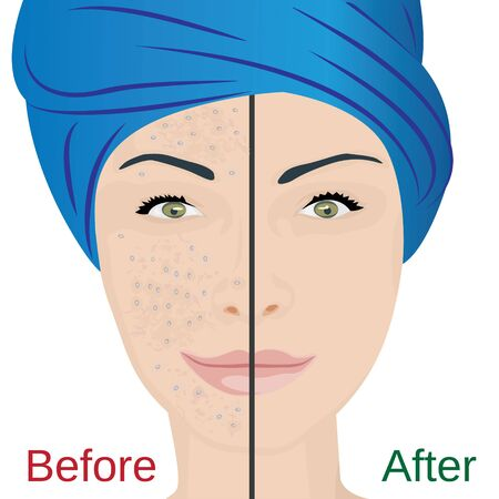 Acne pustules on a woman face and a treatment result before and after. vector illustration. Cosmetology concept, dermatology skin disease  イラスト・ベクター素材