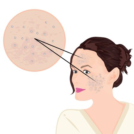 Acne on a face vector illustration showing skin problem 写真素材 - 127822349