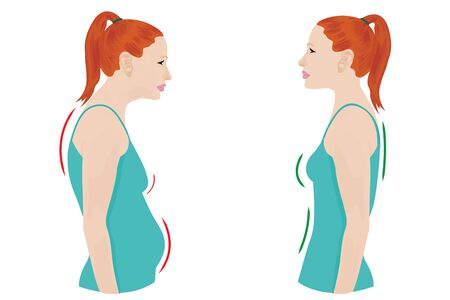 Good and bad posture woman figure vector illustration before and after figure correction