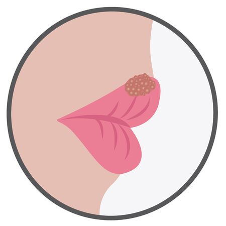Blister on a lip of cold sores viral contageous infection vector illustration on a white background 写真素材 - 127822355