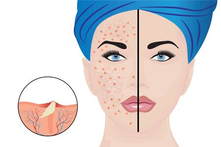 Acne pustules on a woman face and a treatment result before and after. vector illustration. Cosmetology concept, dermatology skin disease Illusztráció