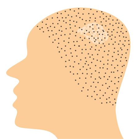 Fungal infection on scalp head vector illustration