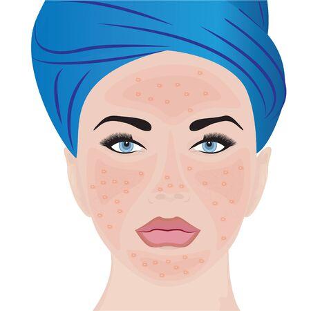 Rosacea moderate on a woman face vector illustration Illusztráció