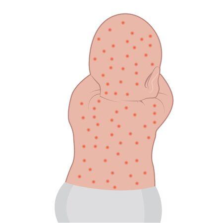 Babys back affected with eczema skin disease vector illustration Dermatology problem