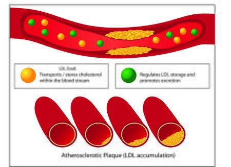 Role of good and bad lipids and levels of atherosclerotic plaque in blood vessel medical vector infographics 向量圖像