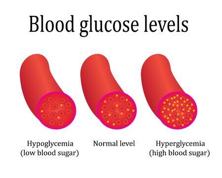 regulations blood sugar level control medical lab analysis vector illustration  infographics
