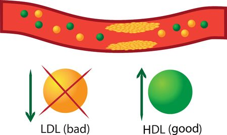 Atherosclerotic plaque in blood vessel, good and bad lipids their regulation in blood vector infographics