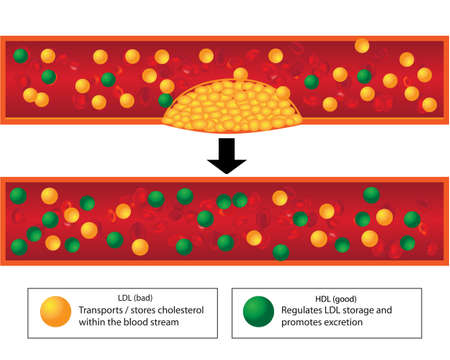 Role of good and bad lipids and levels of atherosclerotic plaque in blood vessel medical vector infographics 일러스트