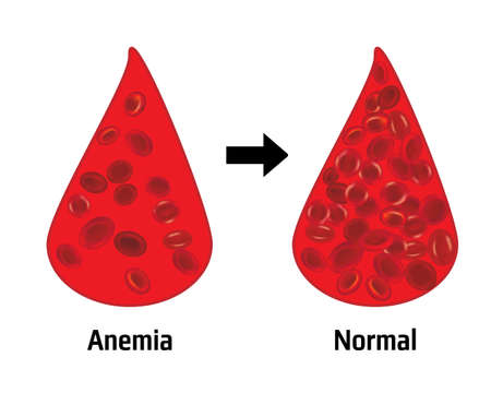 Anemia and normal ammount of red blood cells in a drop of blood vector illustration