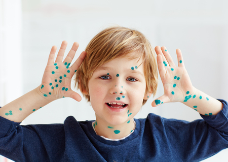 Schattige jonge jongen, kind met kippenpokken, dat is genezen met briljante groene antiseptische Stockfoto