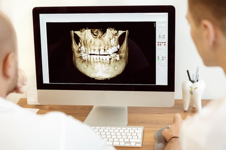 a dentist: Dentists and assistant discussing the x-ray photograph on computer