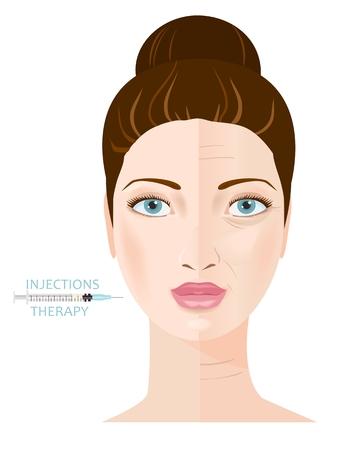 acido: Rejuvenecimiento y la terapia anti-envejecimiento. La inyección de colágeno. Infografía. Vector Vectores