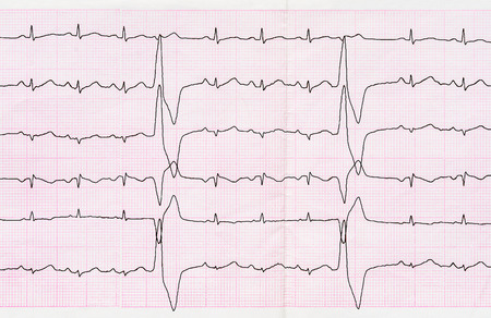 broadened: Emergency cardiology. Tape ECG with ventricular premature beats (quadrigeminia) Stock Photo