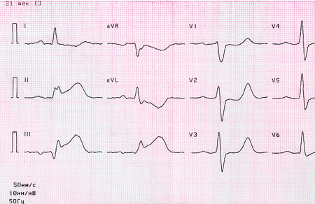 infarction: Emergency Cardiology. Tape ECG with acute period of myocardial infarction