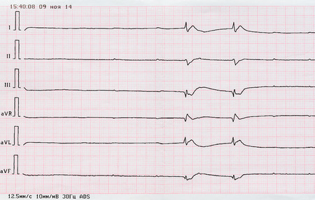 ventricles: Emergency Cardiology. ECG tape with single ventricular complexes and ventricular asystole (dying heart) Stock Photo
