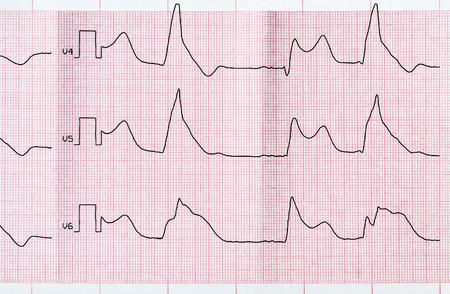 myocardium: Cardiologia emergenza. Nastro ECG con fase acuta di macrofocal infarto miocardico anteriore e bigemia ventricolare Archivio Fotografico
