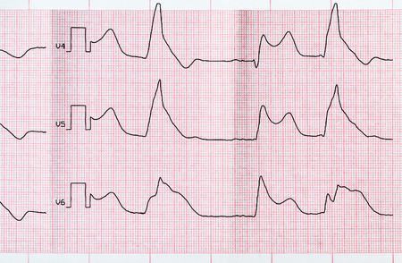 infarction: Emergency Cardiology. Tape ECG with acute period of macrofocal anterior myocardial infarction and ventricular bigemia Stock Photo