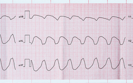 tachycardia: Cardiolog�a de Emergencia. Cinta de ECG con taquicardia ventricular parox�stica