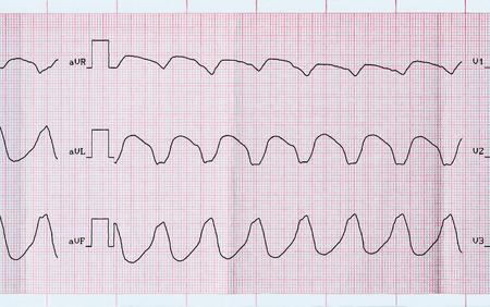 palpitations: Emergency Cardiology. ECG tape with paroxysmal ventricular tachycardia